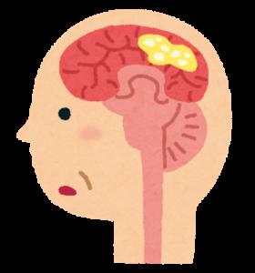 認知症にも訪問鍼灸マッサージは効果的です